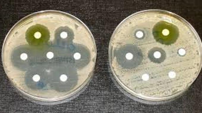 Zbytočné užívanie antibiotík môže pacientom uškodiť